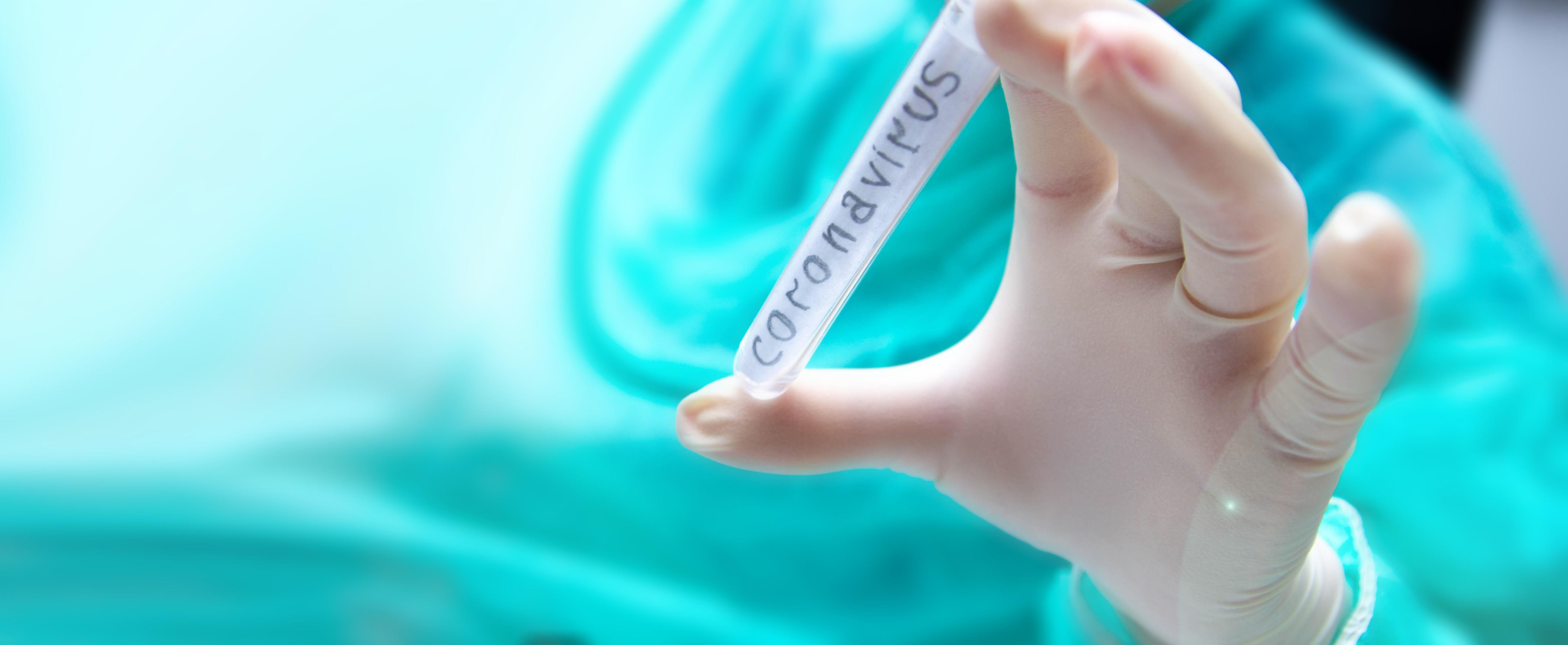 coronavirus test tube